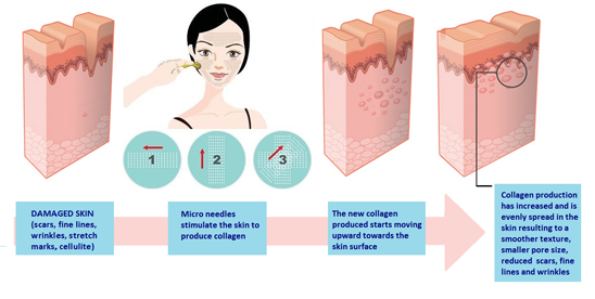 Dermal Roller -  How to use